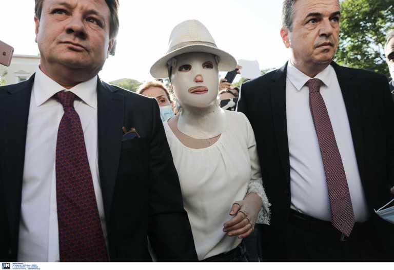 Επίθεση με βιτριόλι: Πότε η Ιωάννα θα βγάλει τη μάσκα αποκατάστασης